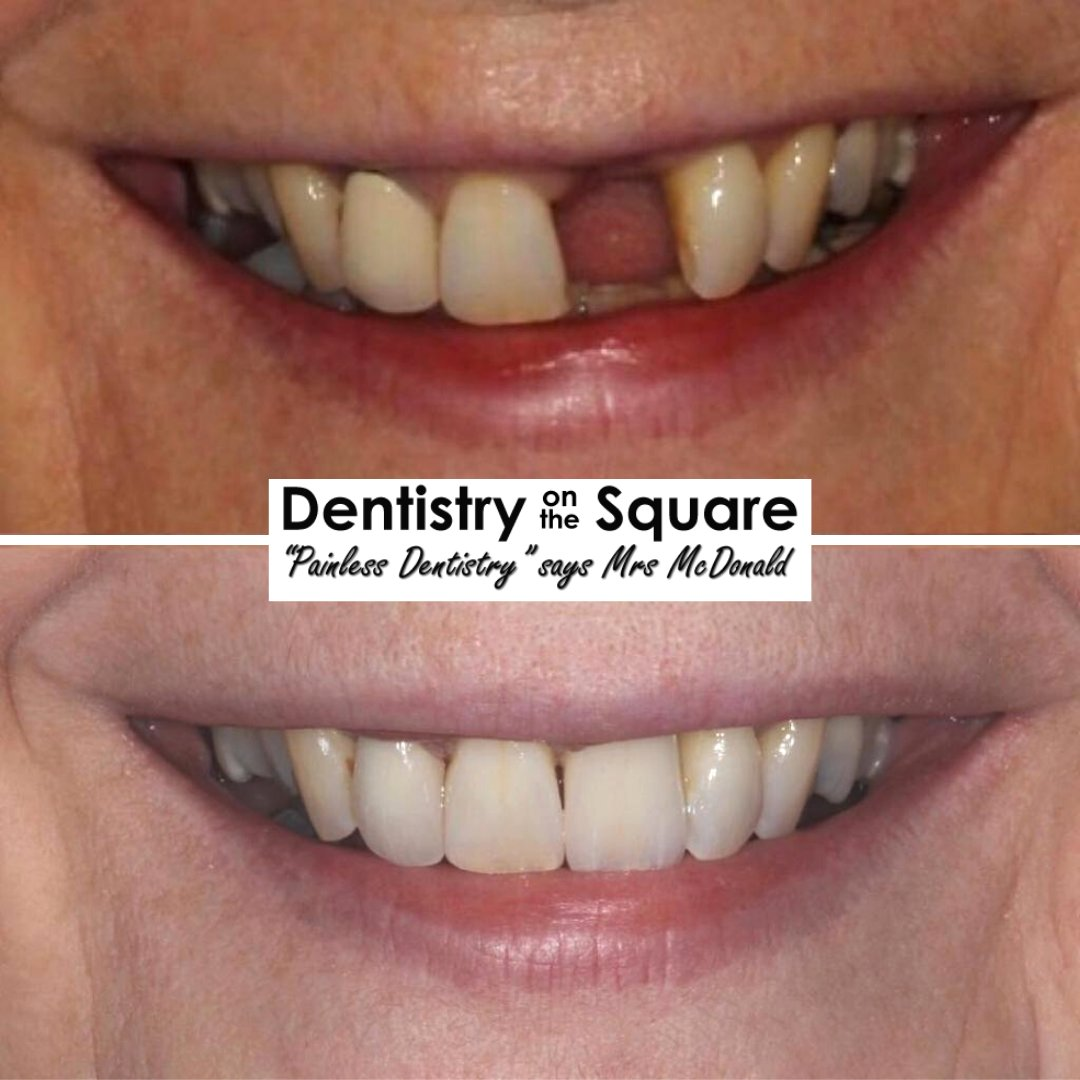 Implant Crowns With Dr Jamie Kerr  For more information or to book your FREE smile makeover video consultation please call us on 0141 423 8877  #dentalimplants #painfreedentistry #smilemakeover #digitalsmiledesign #dentistglasgow #scottishdentist #masterceramistpic.twitter.com/emnA0OxbWy