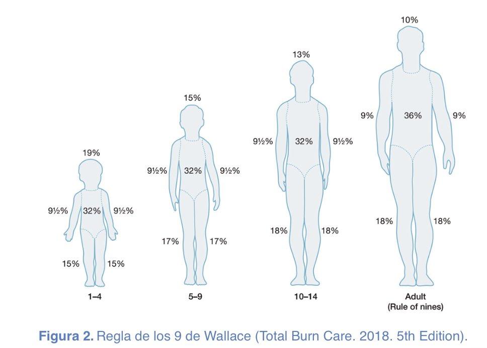 #QuickInfo ℹ️ #RepasoENARM  Regla de Wallace (Regla de los 9) para quemaduras.   ✅Divide superficie del cuerpo en áreas equivalentes al 9% (SCTQ) ✅Clasificación de quemaduras según la profundidad ✅Criterios de Derivación ante pacientes con quemaduras  #Cirugia #ENARM2020 https://t.co/bz0ZnTSYuo