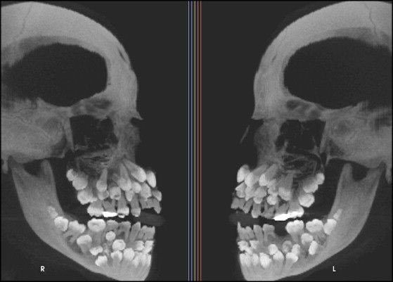 Toddler skull X-rays are terrifying. That is all.