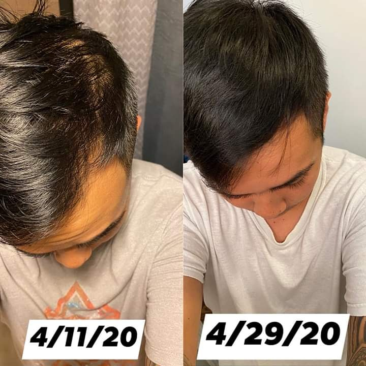 Monat's great at encouraging hair growth, it's never too late to get the hair you want. Check out Joe's before and after below. DM for info #hairproducts #haircare #hairissues #hairproblems #hairloss #hairgoals #hair #menshairworld #baldingsolution #balding #thinhairpic.twitter.com/nFL8z2Y0pS