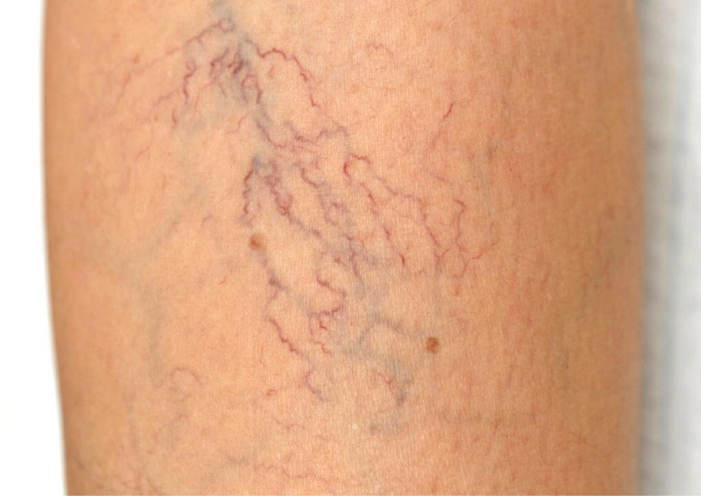 What can you do about varicose veins in your vulva