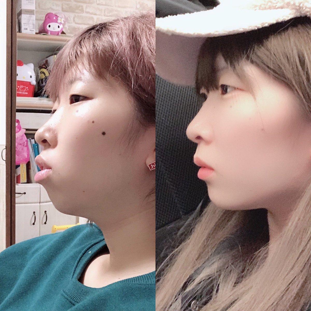 歯 列 矯正 顔 の 変化