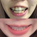 驚きの変化【歯列矯正1年半の変化】ビフォーアフター!