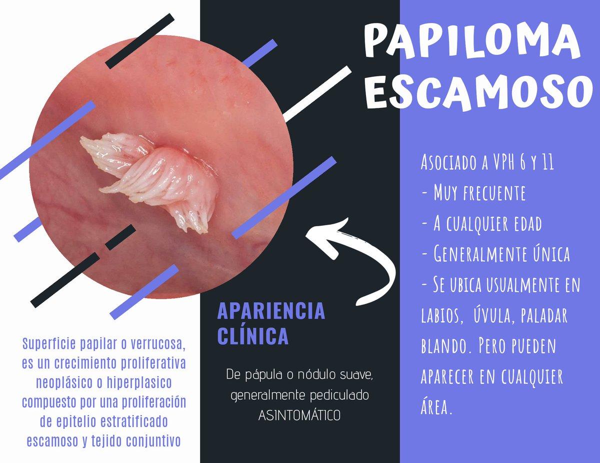 Condilom unde apare. Negii genitali (condilomatoza genitala) – simptome, diagnostic și tratament