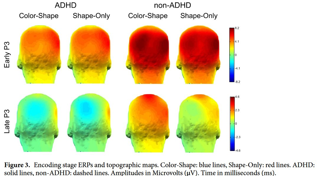 Neurocognitive mechanisms underlying working #memory encoding & retrieval in Attention-Deficit/Hyperactivity Disorder https://t.co/YVka8T1lFP #ADHD #neuroscience #WM #cognition #OpenAccess @UOSPsychology @HaSSPEI https://t.co/XH56bU1AIL
