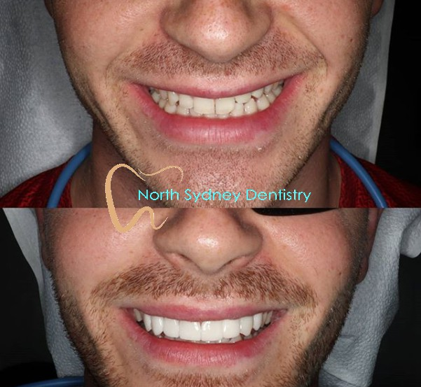 Closing gaps, improving symmetry, lifting the colour. Emax BL4-LT crowns and implant crown to restore the young man's smile from trauma. Please visit our website https://www.northsydneydentistry.com.au/ or call us at (02) 8090 1108  #northsydneydentists #cosmeticdentistry #smilemakeover #veneerspic.twitter.com/2ctnR9zpyj