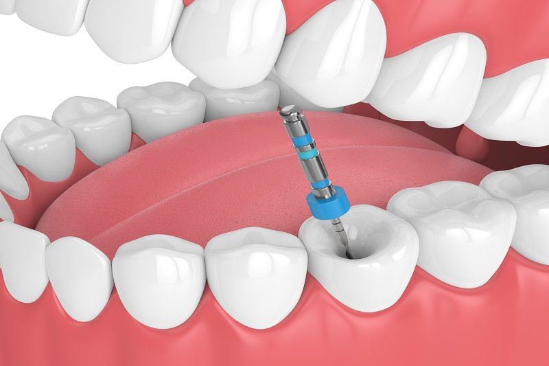 A root canal procedure is needed to save a tooth damaged by severe decay or trauma. Read our blog to know everything about Root Canal Treatment: https://bit.ly/2LWtrBr #oralhealth #rootcanal #dentalcare #dentalhealthpic.twitter.com/UX7NLGn7cq