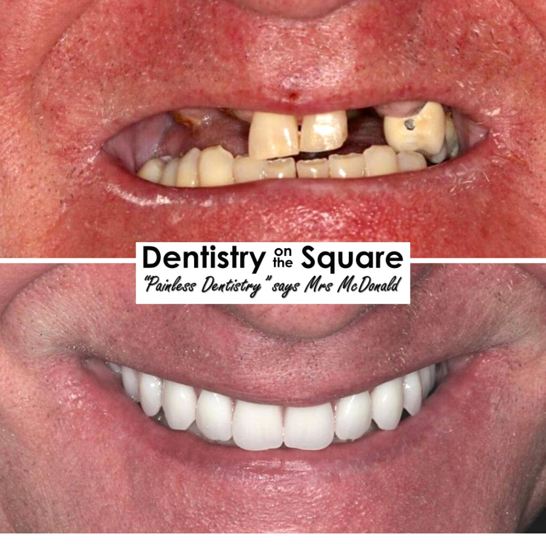 𝗙𝗶𝘅𝗲𝗱 𝗜𝗺𝗽𝗹𝗮𝗻𝘁 𝗕𝗿𝗶𝗱𝗴𝗲𝘀 Dr Jamie Kerr  For more information or to book your 𝗙𝗥𝗘𝗘 smile makeover consultation please call 𝟬𝟭𝟰𝟭 𝟰𝟮𝟯 𝟴𝟴𝟳𝟳.  #implants #cosmeticdentistry #dentalimplantspic.twitter.com/ThiPlOuXEo
