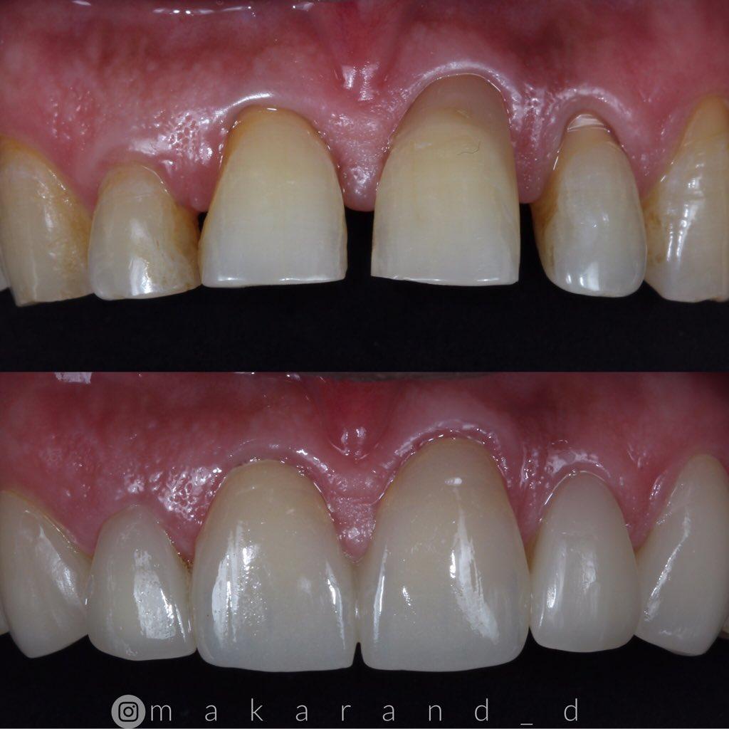 Same day digital smile makeover with IPS e. max veneers. #creativesmilesindia  #cerec #ivoclarvivadent #emaxveneers #cosmeticdentistry #onevisitdentistry #minimalinvasivedentistry #digitaldentistry #dentistry #dentalblog #digitalsmiledesign pic.twitter.com/3MMoGNT3Sj