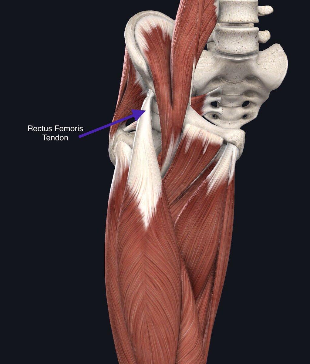 Closer look at Ramiro Funes Mori's injury. Will be surgically repaired. #LaLiga #VillarrealCFpic.twitter.com/F5WVcTdGNW