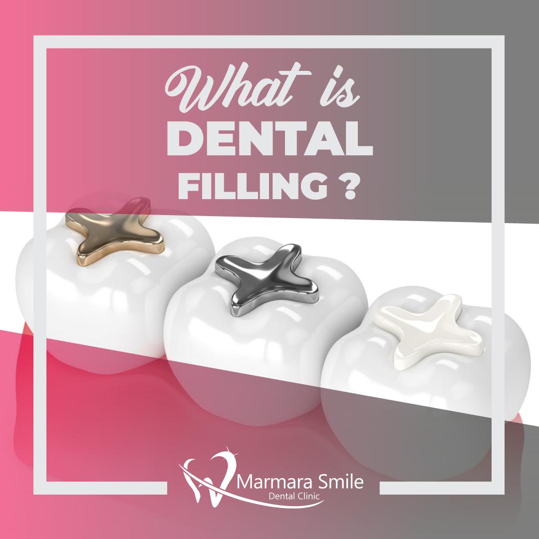 More info: http://bit.ly/356D1ti  #ابتسامة_هوليوود #زراعة_الاسنان #تجميل_الاسنان #تصميم_الابتسامة #تركيبات_الزيركون  #حكيم_اسنان #تصميم_الاسنان #HollywoodSmile #smiledesign #dentist #dentistry #Implant #dentalcrown #cosmeticdentistry pic.twitter.com/pWves9c3I6