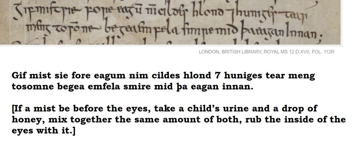 Suffering from poor eye sight? Don't go to Barnard Castle, put some child's urine in your eyes!   (early medieval English remedy)