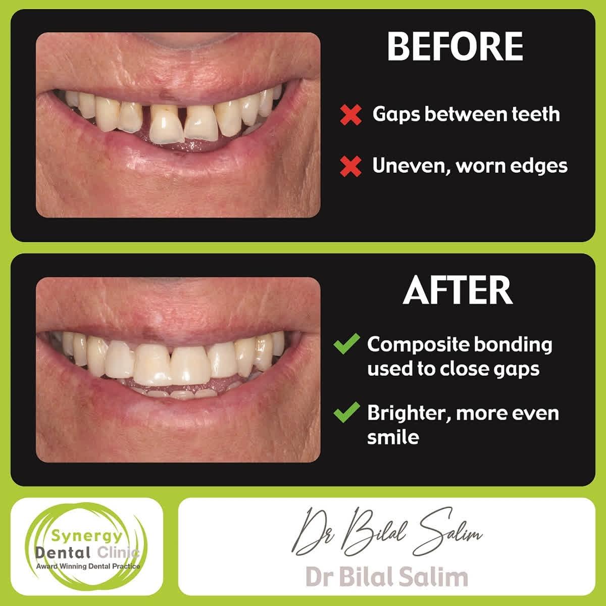 http://www.synergydental.org.uk   Instagram - http://www.instagram.com/synergydentalclinic/…  Twitter - SynergyDentist   Youtube - Synergy Dental Clinics . . . . #toothwhitening #teethwhitening #smilemakeover #dentist #transformation #dentalphotography #cosmetics #makeupartist #fffpic.twitter.com/WtBKYm2Svj