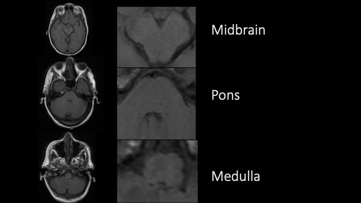 Back with another #neurology #neuroanatomy #tweetorial ...