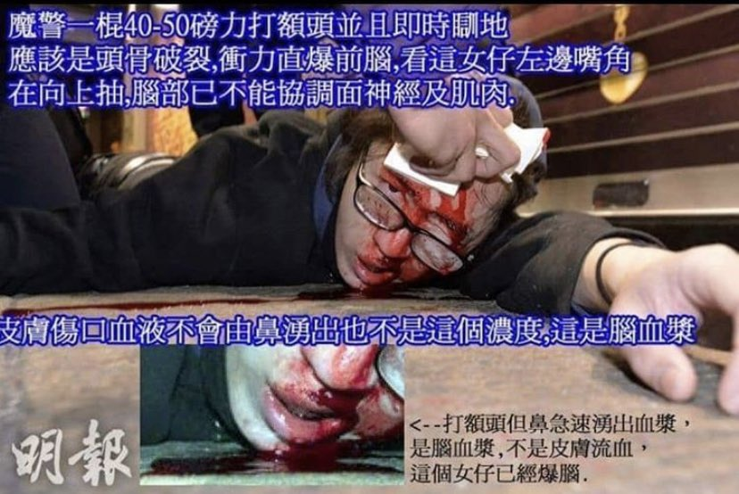 Hk police use a truncheon to hit a girl's head. It causes her skull broken and bleed through her nose. Moreover because they hit her badly so she fall down on ground at once and can't control her facial expression. That's crazy   Source:明報 #黑警 #YouCantStopMepic.twitter.com/torQ1Nomyq