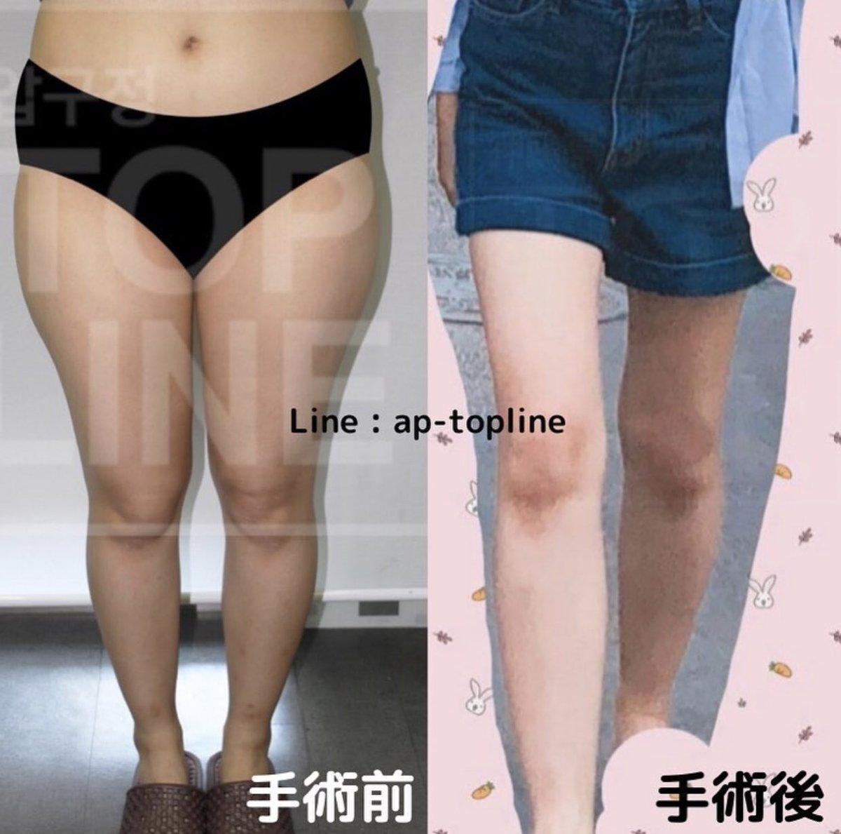 体型の変化でファッションの幅も広がりますよね❣️❣️脂肪吸引をして新しい人生を手に入れるお手伝いをさせて下さい✨✨Line 🌟 ap-topline   #脂肪吸引 #脂肪移植 #ダイエット #美脚 #整形 #美容 #韓国コスメ #ウエスト #腹部 #くびれ #diet #美尻 #太もも #ファッション