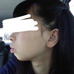 歯列矯正したら横顔も美しくなれる!?