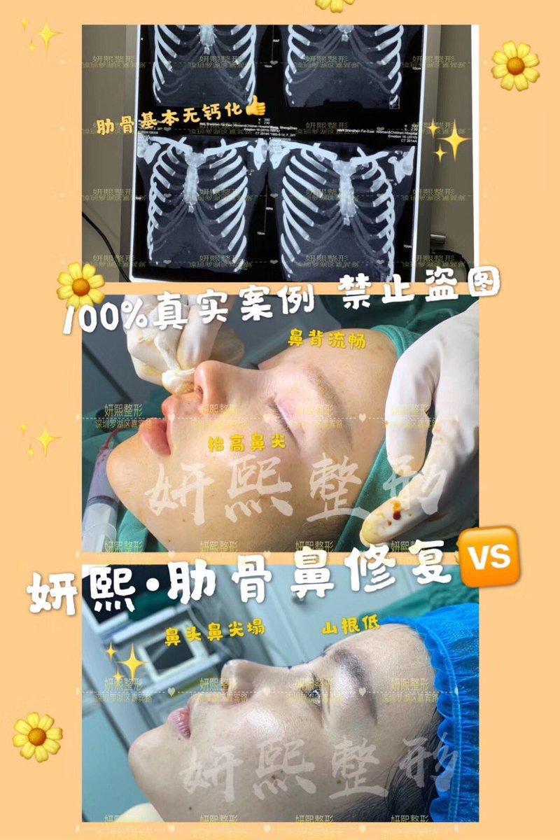 施術名:❤️PTFEプロテーゼによる隆鼻術✨肋軟骨による鼻先形成術💓施術内容:プロテーゼを患者様の鼻筋形態に合わせて成形し、鼻柱の下から、骨膜下に挿入しテープ固定します!#整形#整形垢さんと繋がりたい #美容