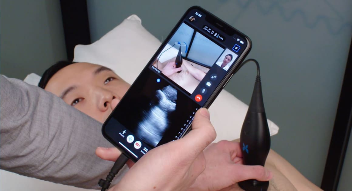 An iPhone and an ultrasound wand could help doctors monitor COVID-19 remotely