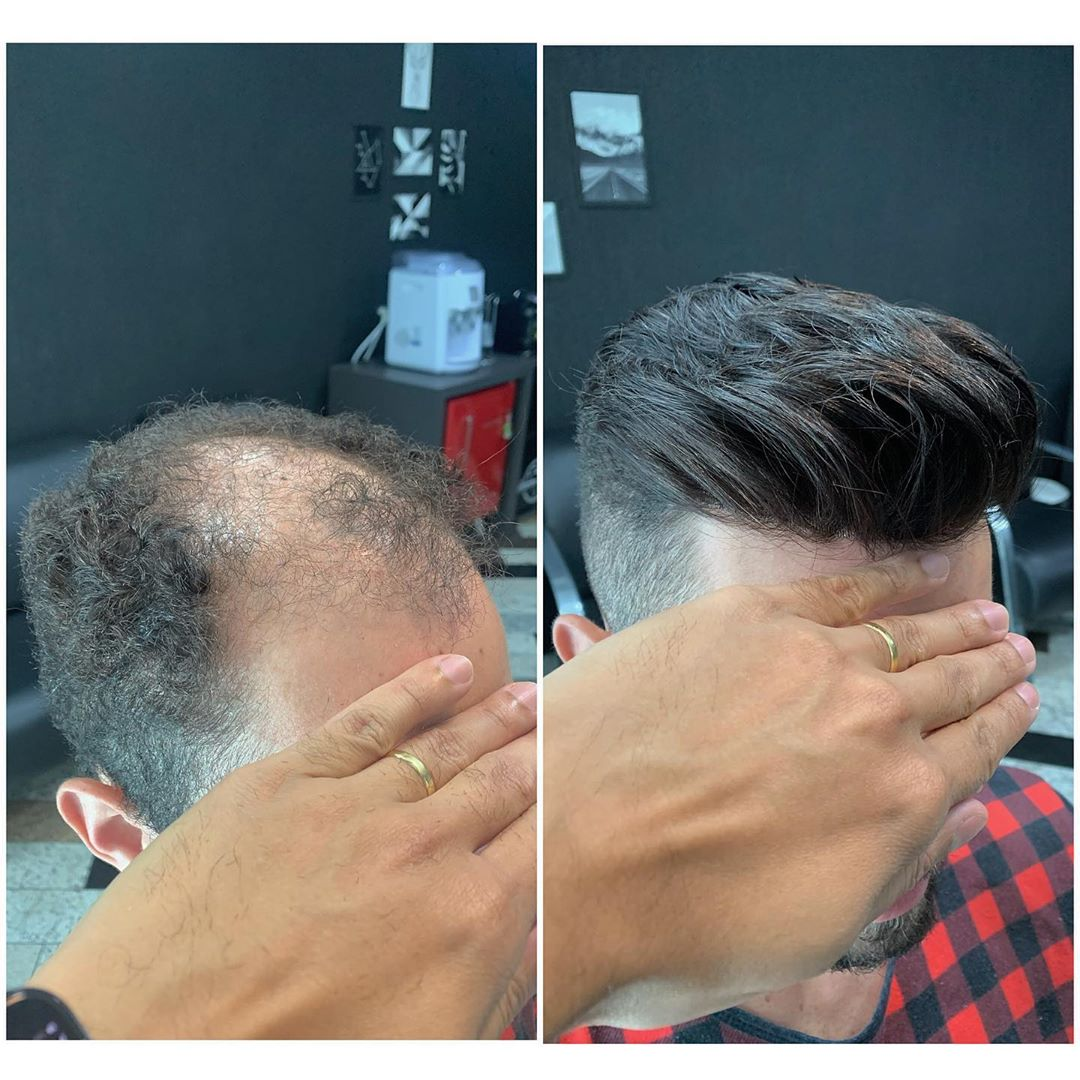 Do you want to know more about the toupee? Please contact us. . . . . . . . . . #toupee #humanhairtoupee #customhairpiece #hairloss #hairlosshelp  #instahair  #hairsystem  #beforeandafterhair #mensstyle #mensfashion #menshairstyle #newhairtrend2020 #freshhairstyle #addbeautymallpic.twitter.com/TMwODpvmHT