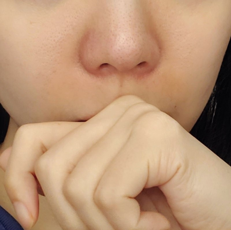 My nose is like always red and looks irritated...are there any solutions to this :[ it's the only area on my face I feel I have to use concealer but I wonder if that makes it worse. https://t.co/4lWCWmE6QM