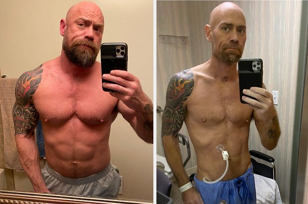 Spoke with Mike Schultz who has gone viral for sharing a before/after photo of his six weeks in the hospital after contracting the coronavirus at the Miami Winter Party Festival buzzfeednews.com/article/davidm…