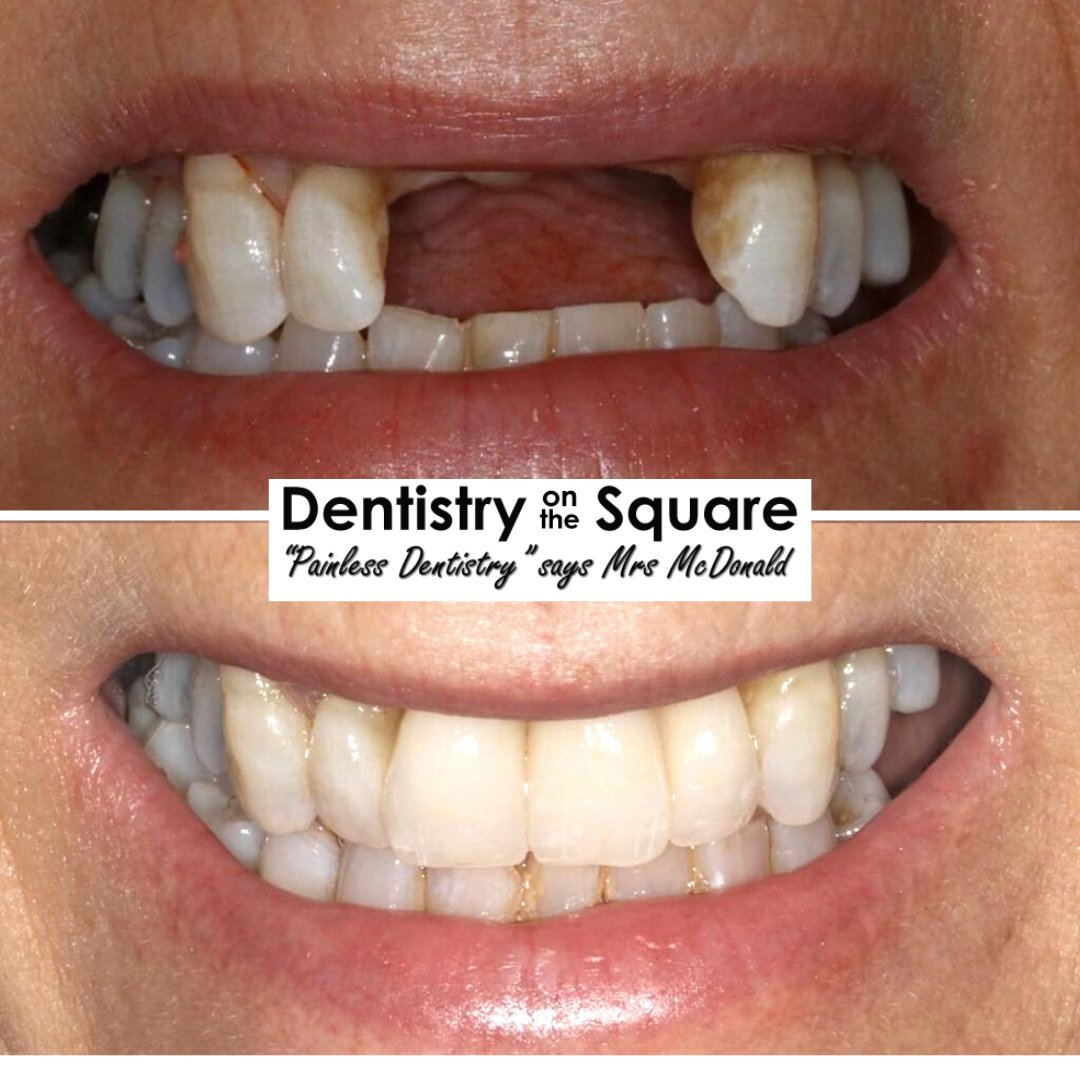 𝗥𝗲𝗺𝗼𝘃𝗮𝗯𝗹𝗲 𝗜𝗺𝗽𝗹𝗮𝗻𝘁 𝗕𝗿𝗶𝗱𝗴𝗲𝘀 Dr Jamie Kerr  For more information or to book your 𝗙𝗥𝗘𝗘 smile makeover consultation please the link in bio or call us on 𝟬𝟭𝟰𝟭 𝟰𝟮𝟯 𝟴𝟴𝟳𝟳.  #dentalimplants #painfreedentistry #smilemakeover #digitalsmiledesign pic.twitter.com/FZH2R5y7f5
