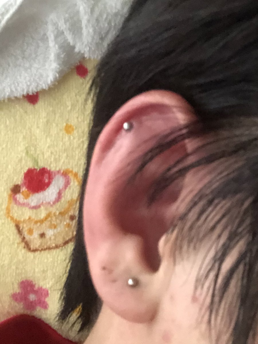 腫れる ピアス 耳