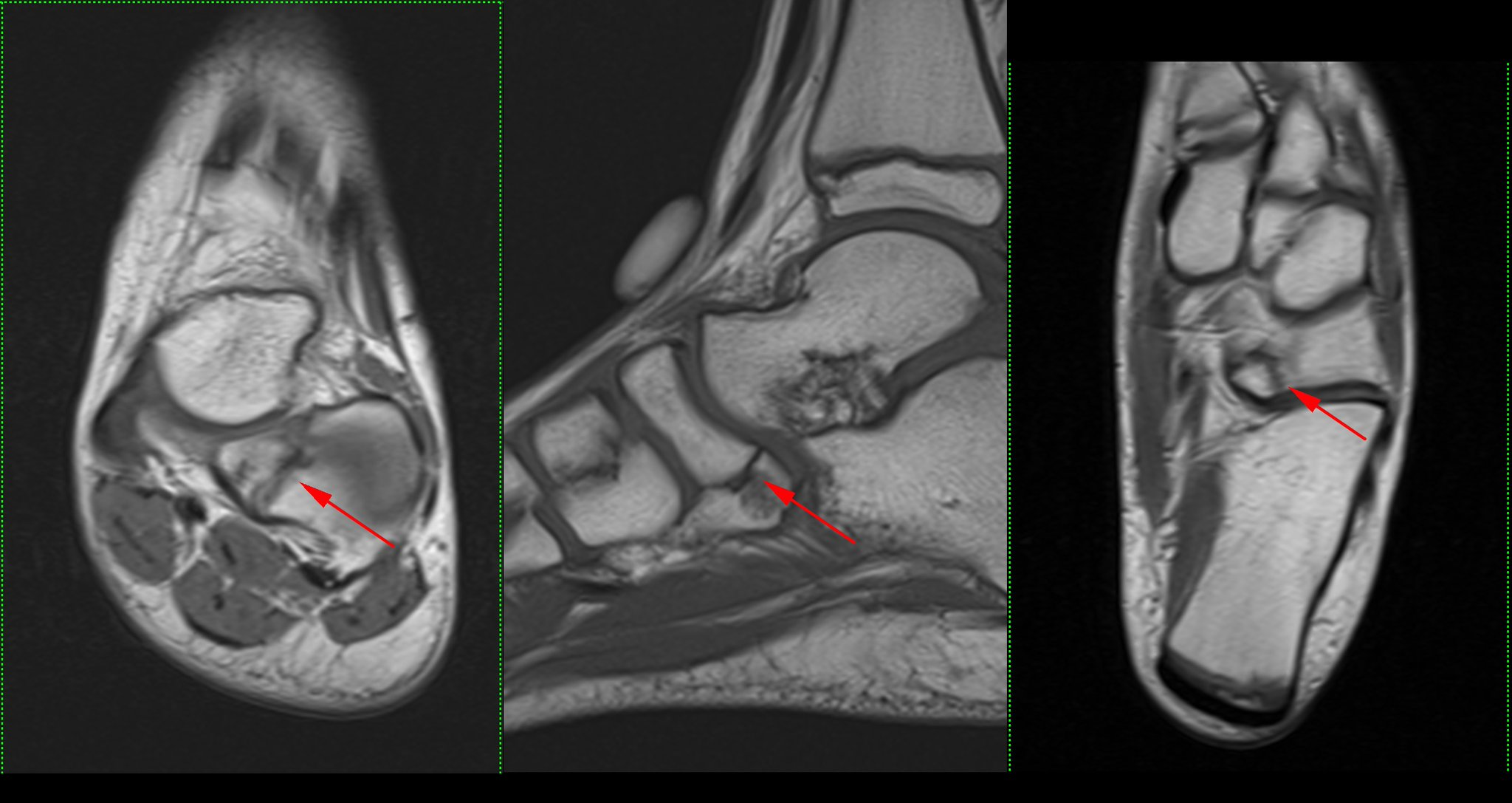 Ara Kassarjian Md Frcpc On Twitter As Promised To Cquirkmsk And Smfowler Shaun Cuboid Navicular Coalition In An 11 Y O Barely Any Edema At The Synchondrosis In This Case Https T Co 4i39ofzlyy Https T Co 8rmboo3yky Https T Co Vh30q9cqed Related online courses on physioplus. twitter