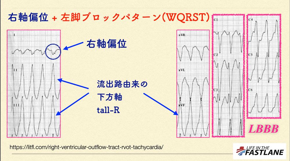 位 心電図 軸 偏 さ