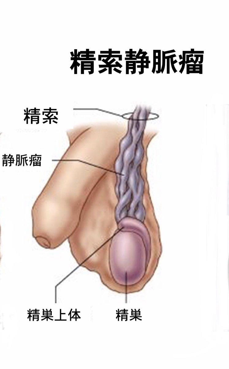 瘤 静脈 精 手術 索