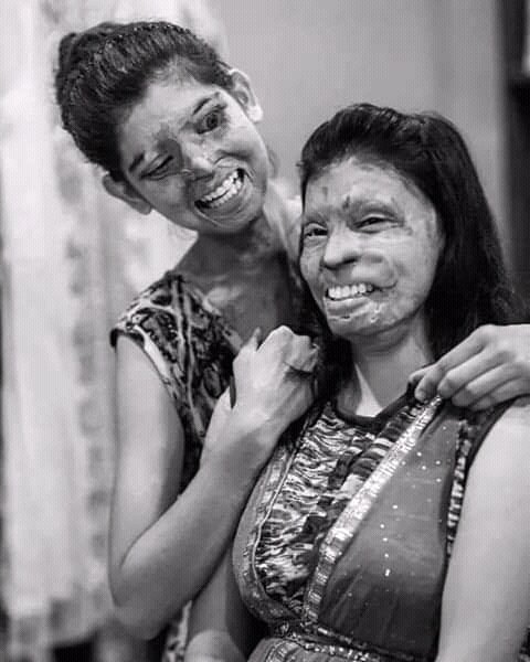 you can damage the beauty of faces but not of the souls.   #Beauty #Bravehearts #noacidattackspic.twitter.com/HliJYIqHmT