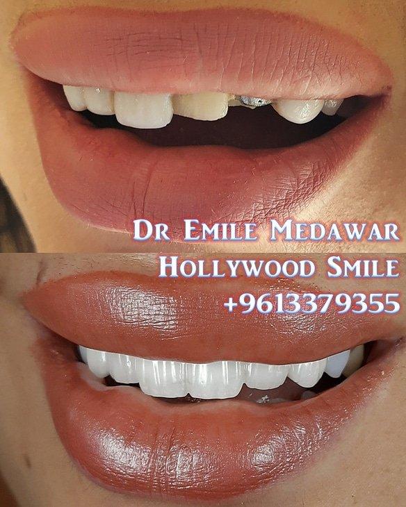 Zirconium Smile by Dr Emile Medawar 009613379355 #hollywoodsmile #lebanon  #veneers #teeth #lumineers #teethwhitening #dentalimplants #cosmeticdentist  #smilemakeover #plasticsurgery #dentist  #beirut #smile  #porcelainveneers  #dubai #dentalclinic  #tooth #veneerpic.twitter.com/C6UA1OmWY4