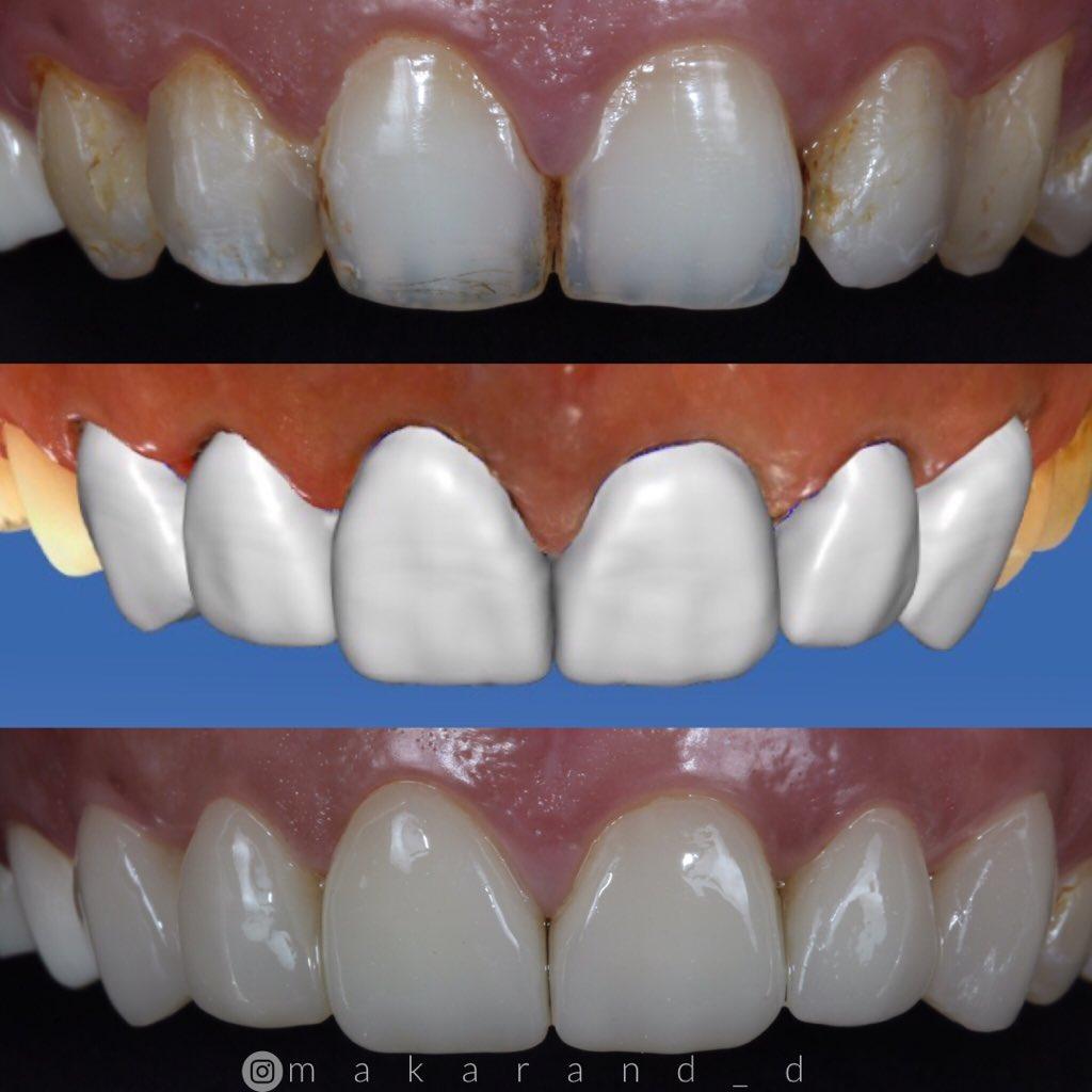 Same day digital smile makeover with IPS e. max veneers. #creativesmilesindia  #cerec #ivoclarvivadent #emaxveneers #cosmeticdentistry #onevisitdentistry #minimalinvasivedentistry #digitaldentistry #dentistry #dentalblog #digitalsmiledesign pic.twitter.com/ltCGW4BbTF