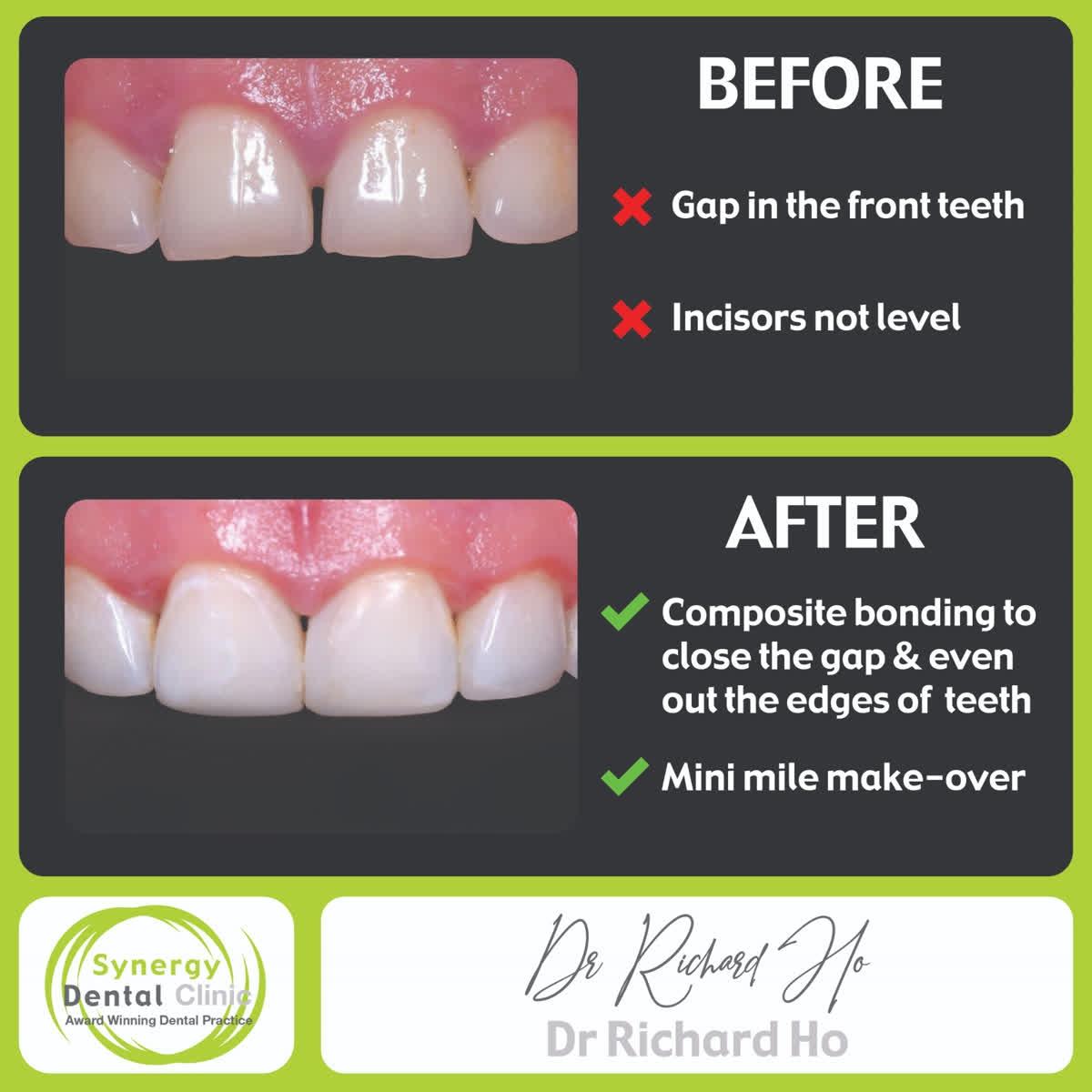 🌍 https://t.co/5pYuhYL7Ju  📱 Instagram - https://t.co/G2pNfgZG5S  🐦Twitter - SynergyDentist  🎥 Youtube - Synergy Dental Clinics . . . . #toothwhitening #teethwhitening #smilemakeover #dentist #transformation #dentalphotography #cosmetics #makeupartist #fff https://t.co/va2JQbgVjd
