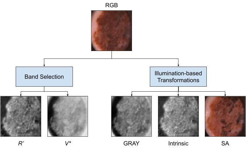 Code for our #CVPR #ISIC paper to generate illumination based transformations for dermoscopic images of skin lesions. #CVPR2020 #MedicalImageAnalysis #Dermatology #DeepLearning   http://i.sfu.ca/QHqsuIpic.twitter.com/XrAmVt1XlB