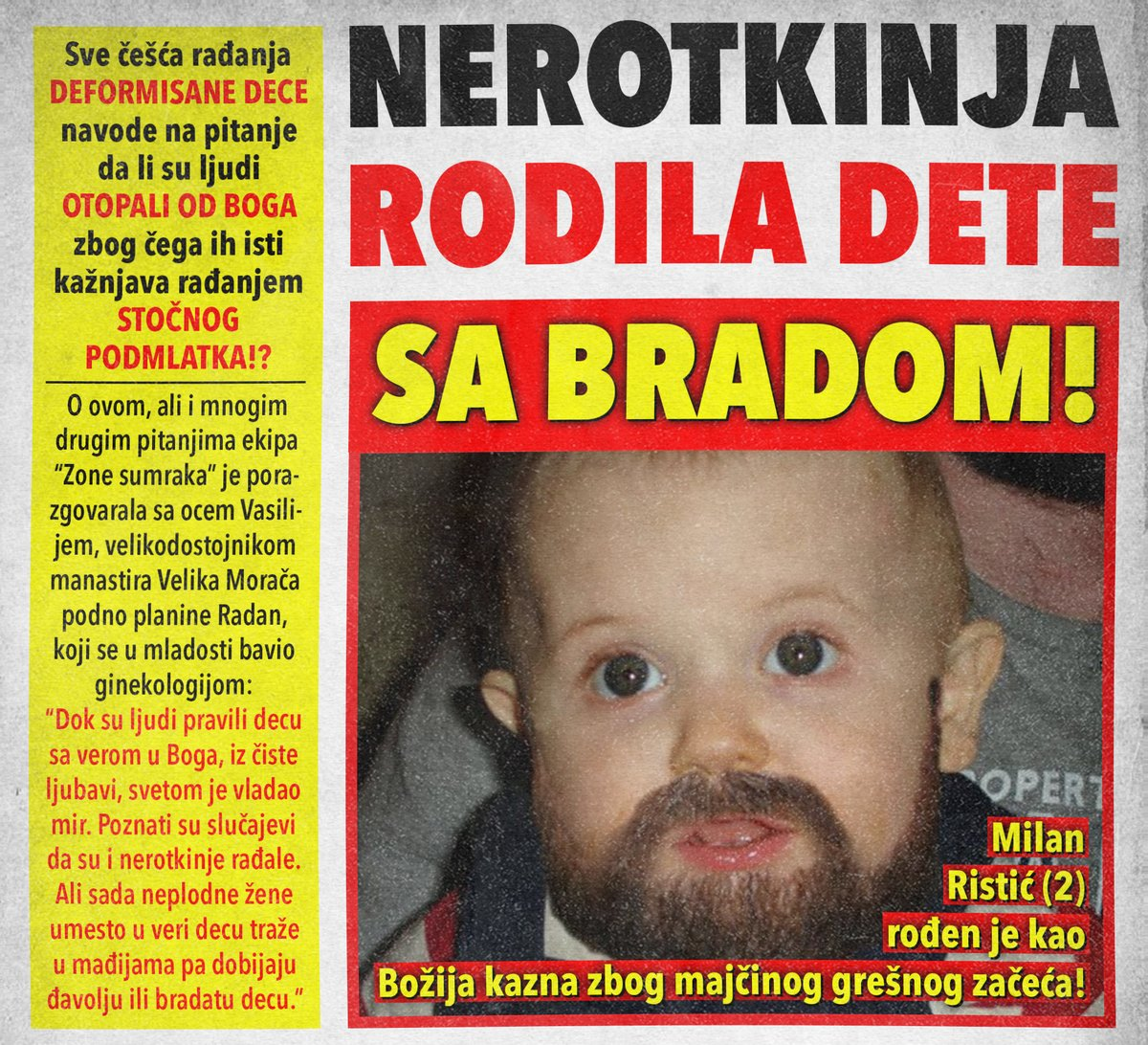 Nerotkinja rodila dete sa bradom