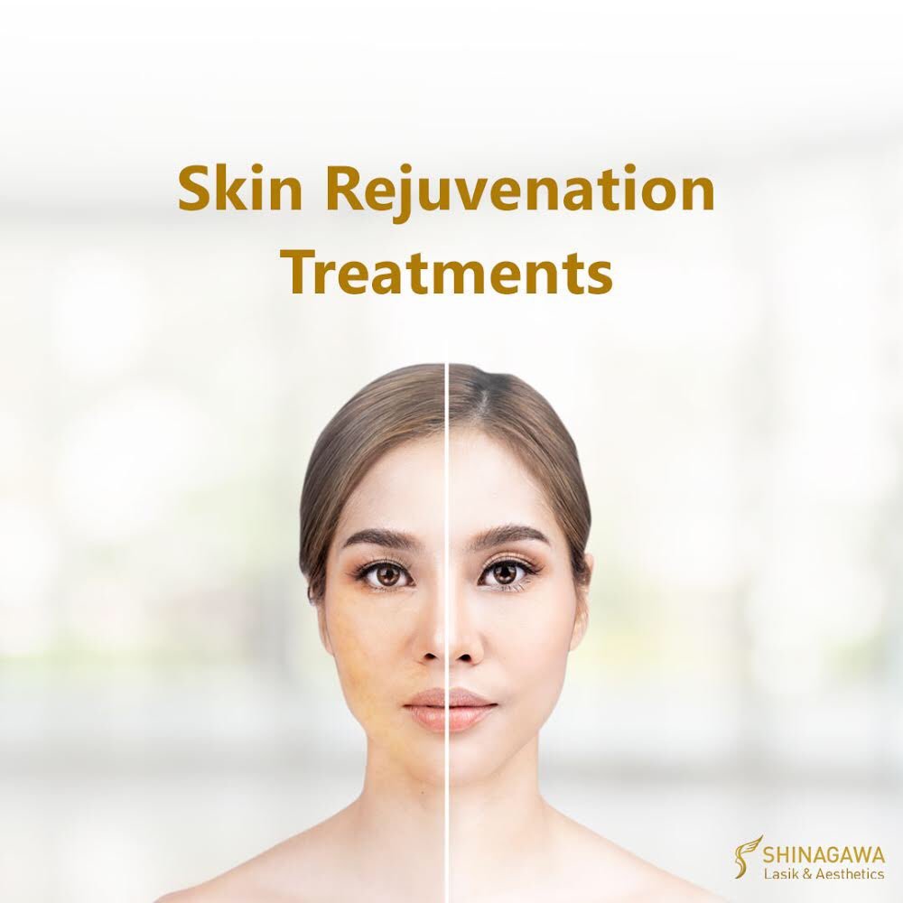 3. Skin Rejuvenation Treatments – Your skin most definitely needs some refreshments. Our laser treatments help in regaining your youthful zest. Fractional CO2, RevLite SI, and SynchroDerm Plus can all get the job done.