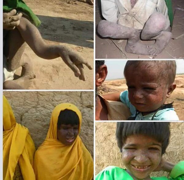 Ground Zero is Chaghi & Kharan, spring of cancer patients is Occupied Balochistan but cancer hospitals in Punjab & Karachi. Pakistan is playing death game with Baloch but world is just a bystander silently watching game of blood Pakistan is playing with us. #NoToPakistaniNukes<br>http://pic.twitter.com/d0vVAYXyh7