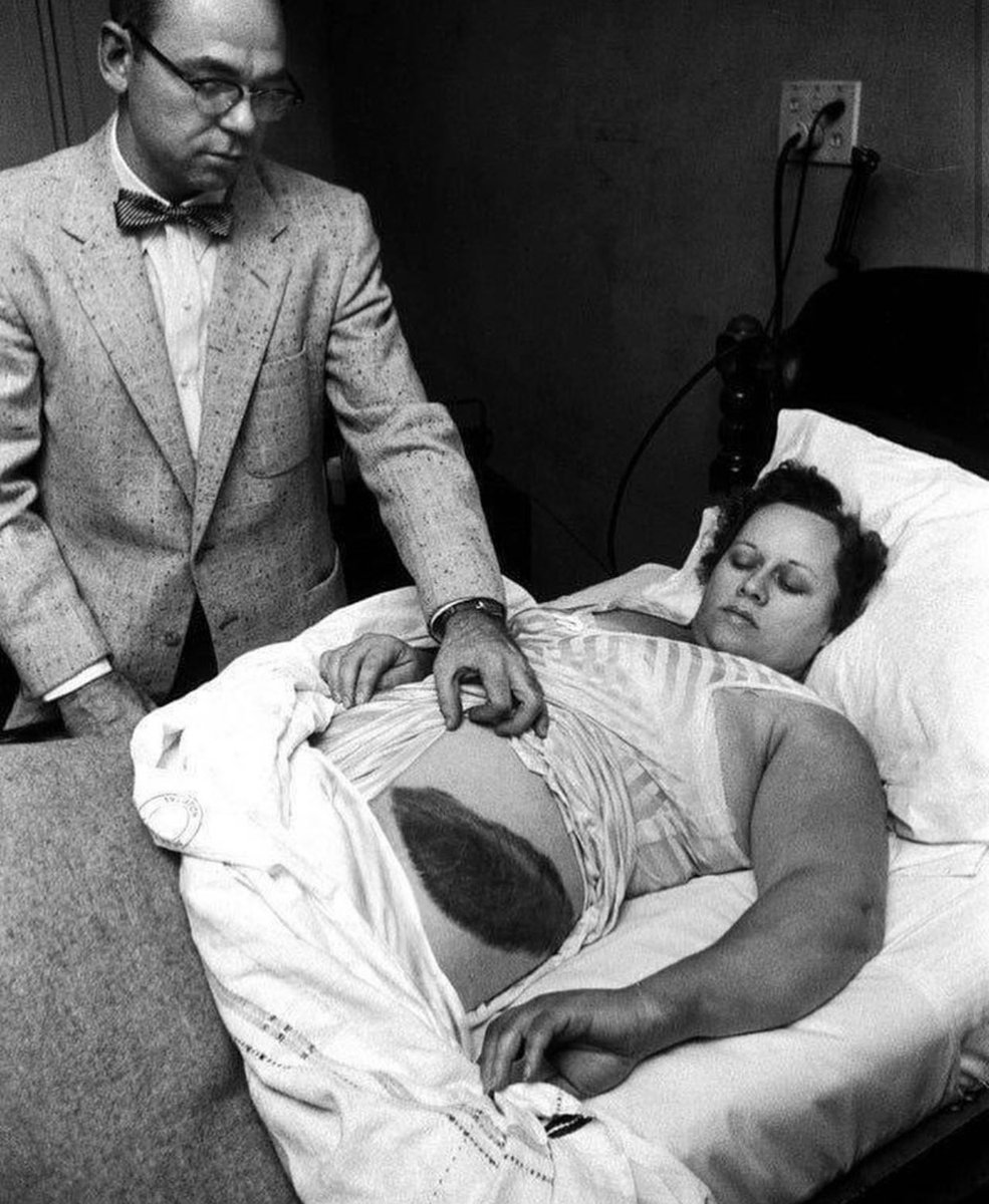 1954 -Ann Hodges, the only human being in recorded history to be hit by a meteorite. https://t.co/N4FGWTmimS