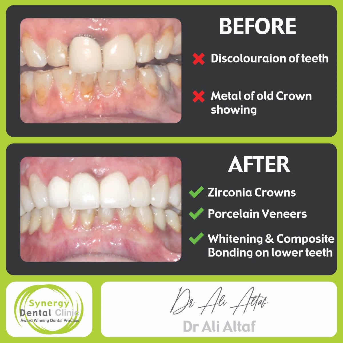 http://www.synergydental.org.uk    Instagram - http://www.instagram.com/synergydentalclinic/ …  Twitter - SynergyDentist   Youtube - Synergy Dental Clinics . . . . #toothwhitening #teethwhitening #smilemakeover #dentist #transformation #dentalphotography #cosmetics #makeupartist #fffpic.twitter.com/IubxPv83Id