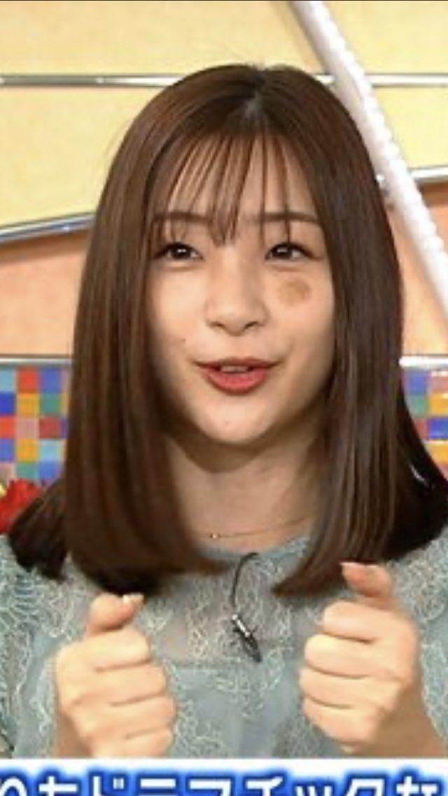 足立梨花さんの顔にアザができている画像
