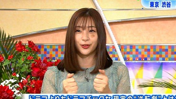 土曜スタジオパークの放送で足立梨花さんの顔にアザができている画像