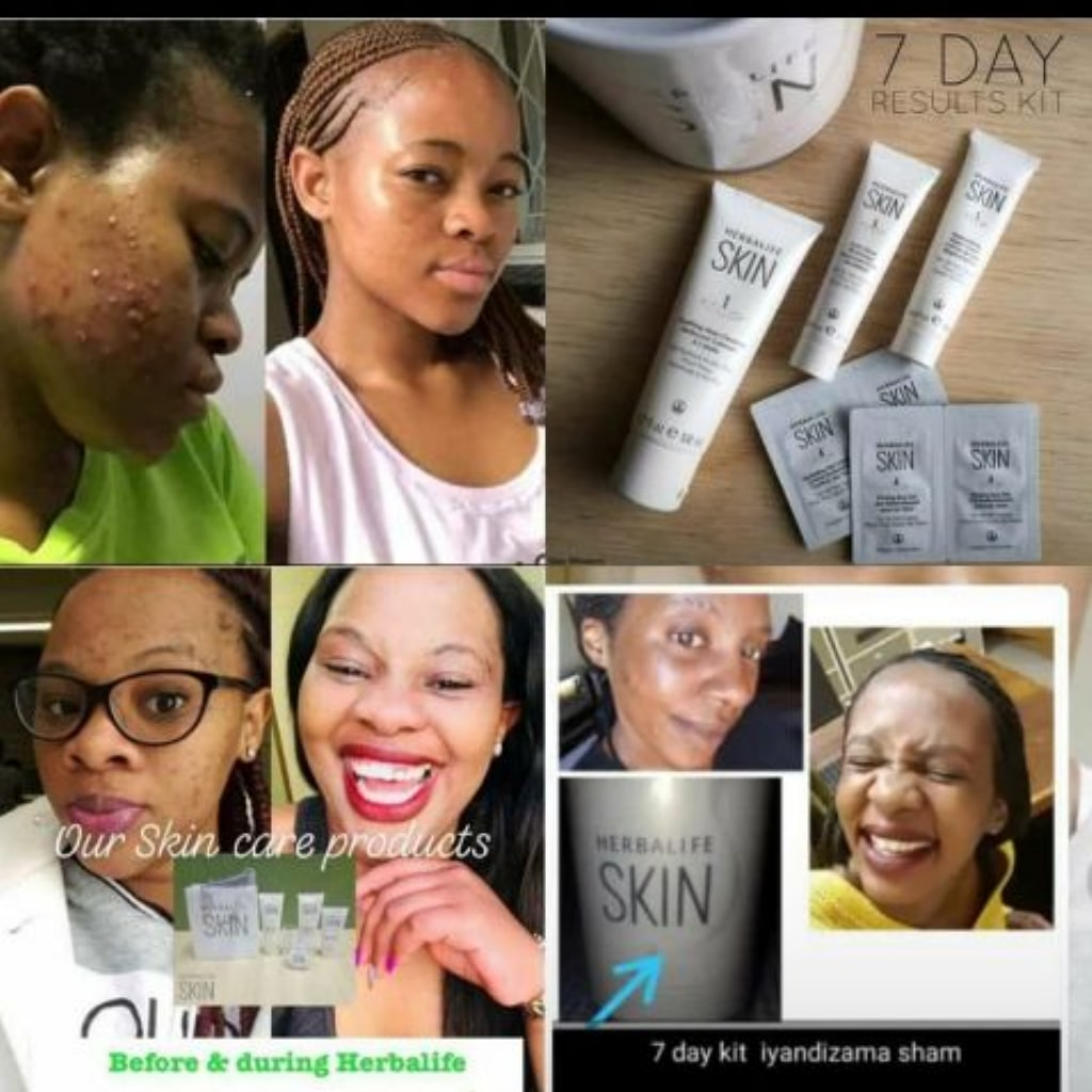Queen Nox On Twitter Say Bye To Ance Black Spots Pimples And Blackheads Hello To Glowing Flawless And Radiant Skin With Herbalife Skin Care Product Herbalife Https T Co Tdq6xv6q0u