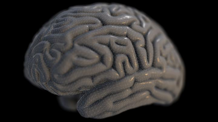 Why is Alzheimer's still a medical mystery?