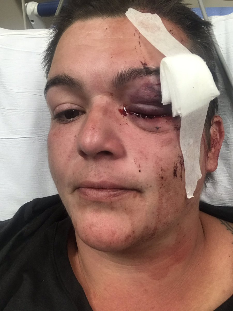 Linda Tirano, a photojournalist in #Minneapolis who has worked for The Guardian, was shot in the face with a rubber bullet by the police.  The doctors performed emergency surgery, but they were unable to save her eye. She is now permanently blind in that eye. https://t.co/2MgzLPbOLl