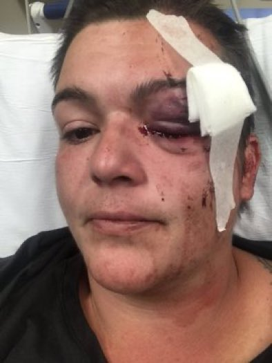 """Police shot this journalist in the eye with a non-lethal round.  Her doctors attempted to save it, but the eye had exploded and now she is permanently blind in that eye.  The police shot a journalist on American soil."" https://t.co/BV7z88uoUh"