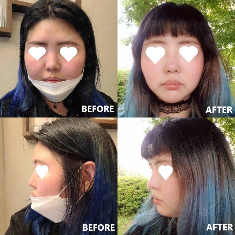 鼻 プロテーゼ 韓国