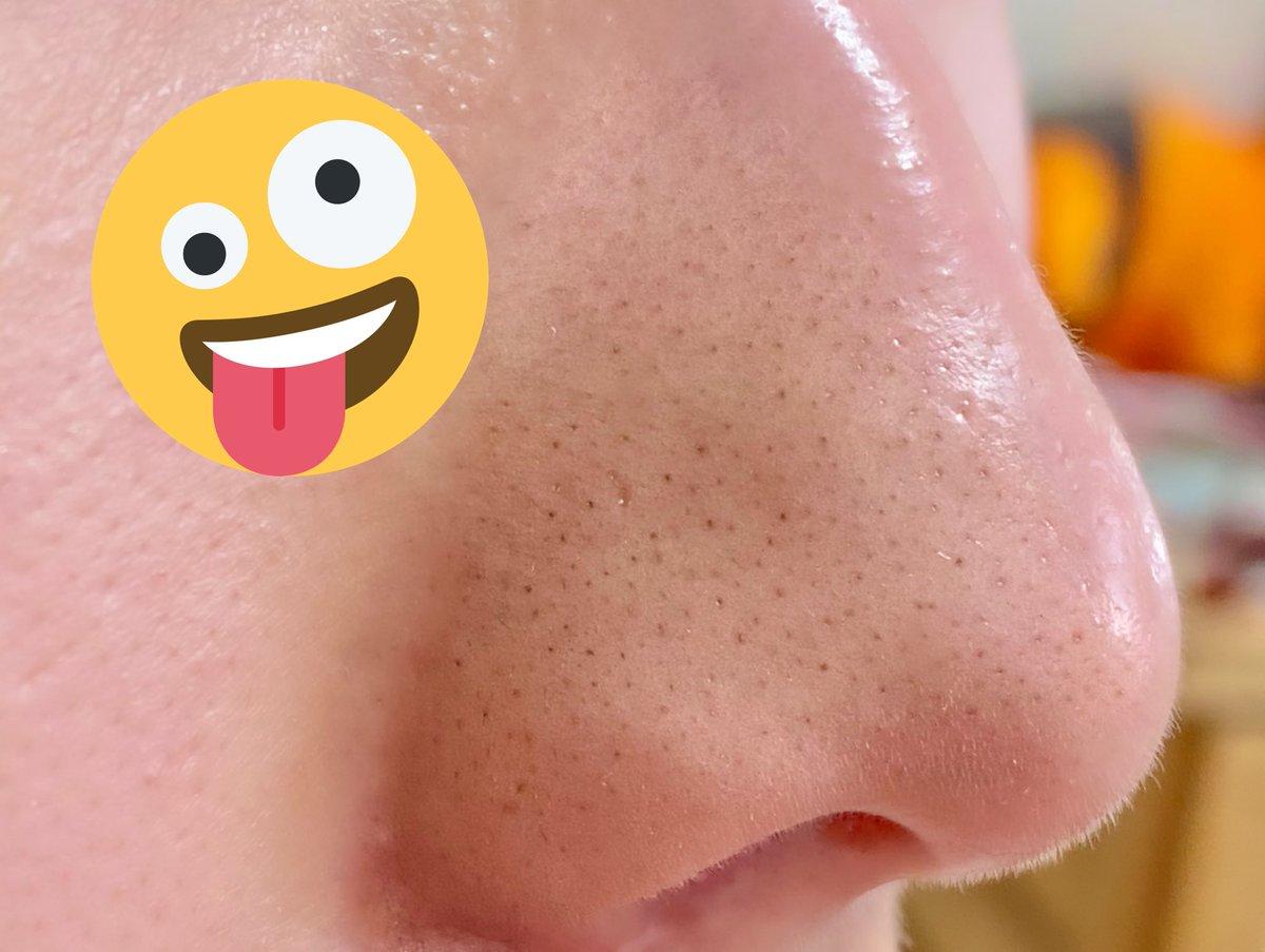 角 鼻 方 取り の 栓