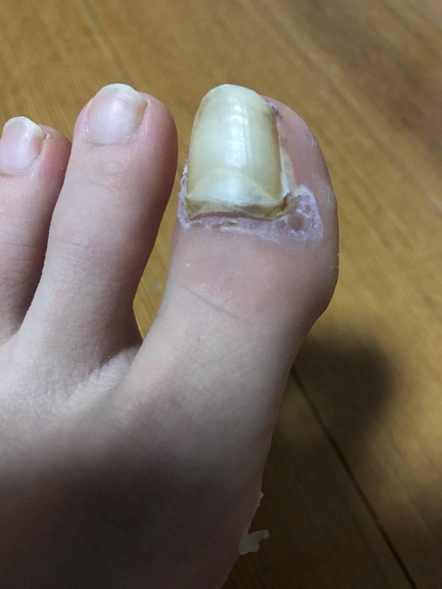 た ぶつけ 内出血 指 の 足